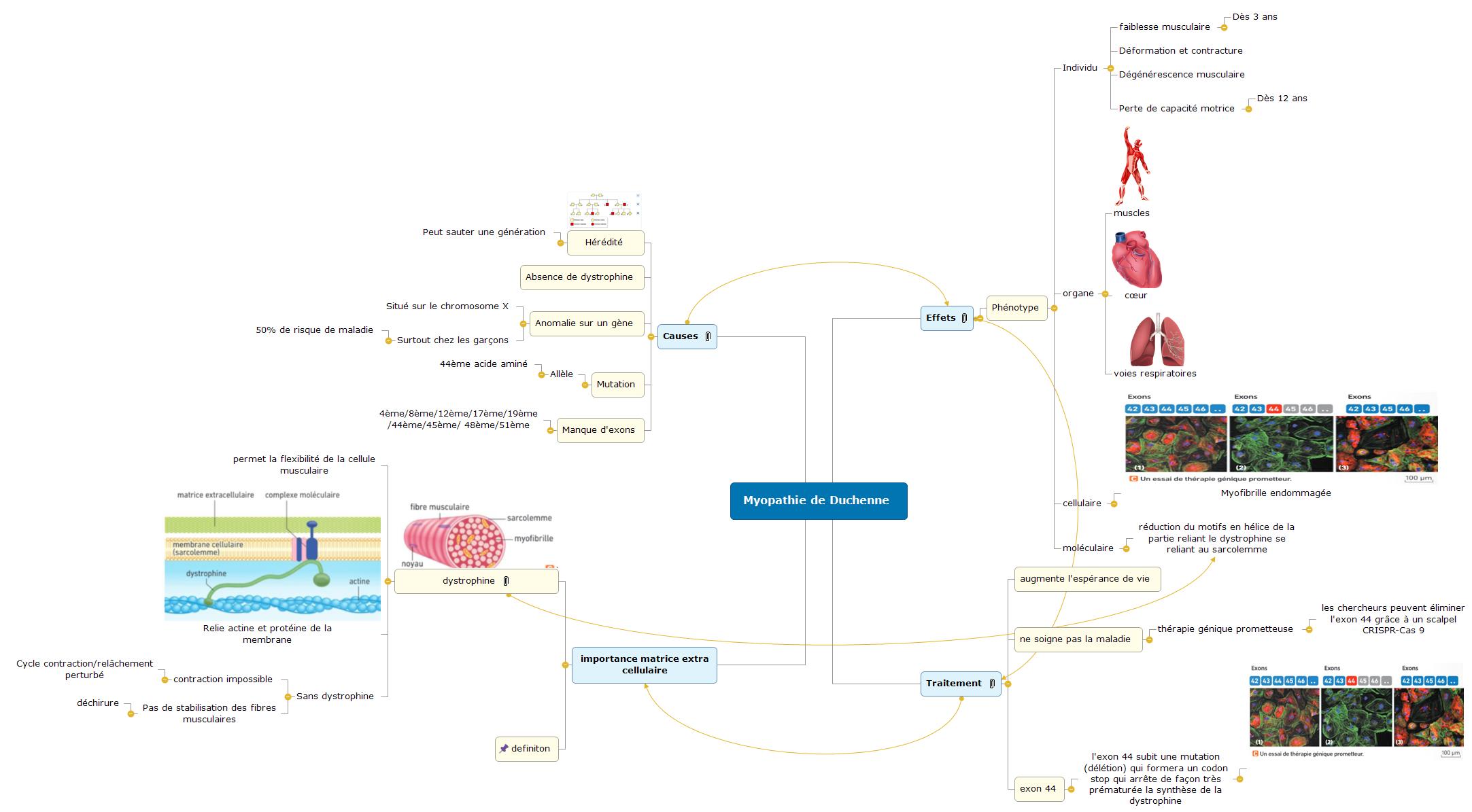 Myopathie de Duchenne1 (1) Mind Maps